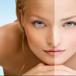 Як освітлити шкіру обличчя після засмаги в домашніх умовах?