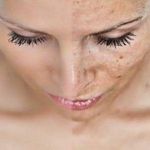 Як прибрати пігментні плями на обличчі? 10 натуральних способів