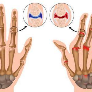 Корисні продукти при захворюваннях хребта, артриті і болях в суглобах