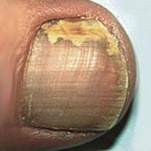 Захворювання нігтів. Хвороби нігтів